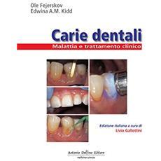 Carie dentali. Malattia e trattamento clinico