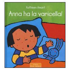 Anna ha la varicella!