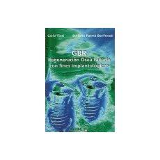 GBR. Regeneración ósea guiada con fines implantológicos